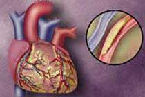 Обнаружена связь между болезнями сердца и раком кишечника
