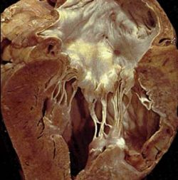 Болезни сердца активизируют защиту организма