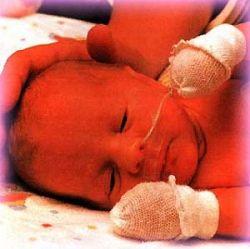 Низкий уровень холестерина повышает риск преждевременных родов