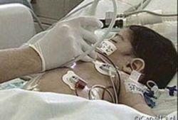 Чилийские хирурги разделили сиамских близнецов