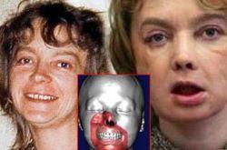 Женщина, перенесшая операцию по трансплантации лица, никогда не сможет целоваться