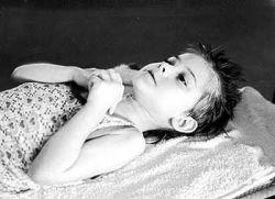 Во Львовской области дети гибнут от неизвестной болезни