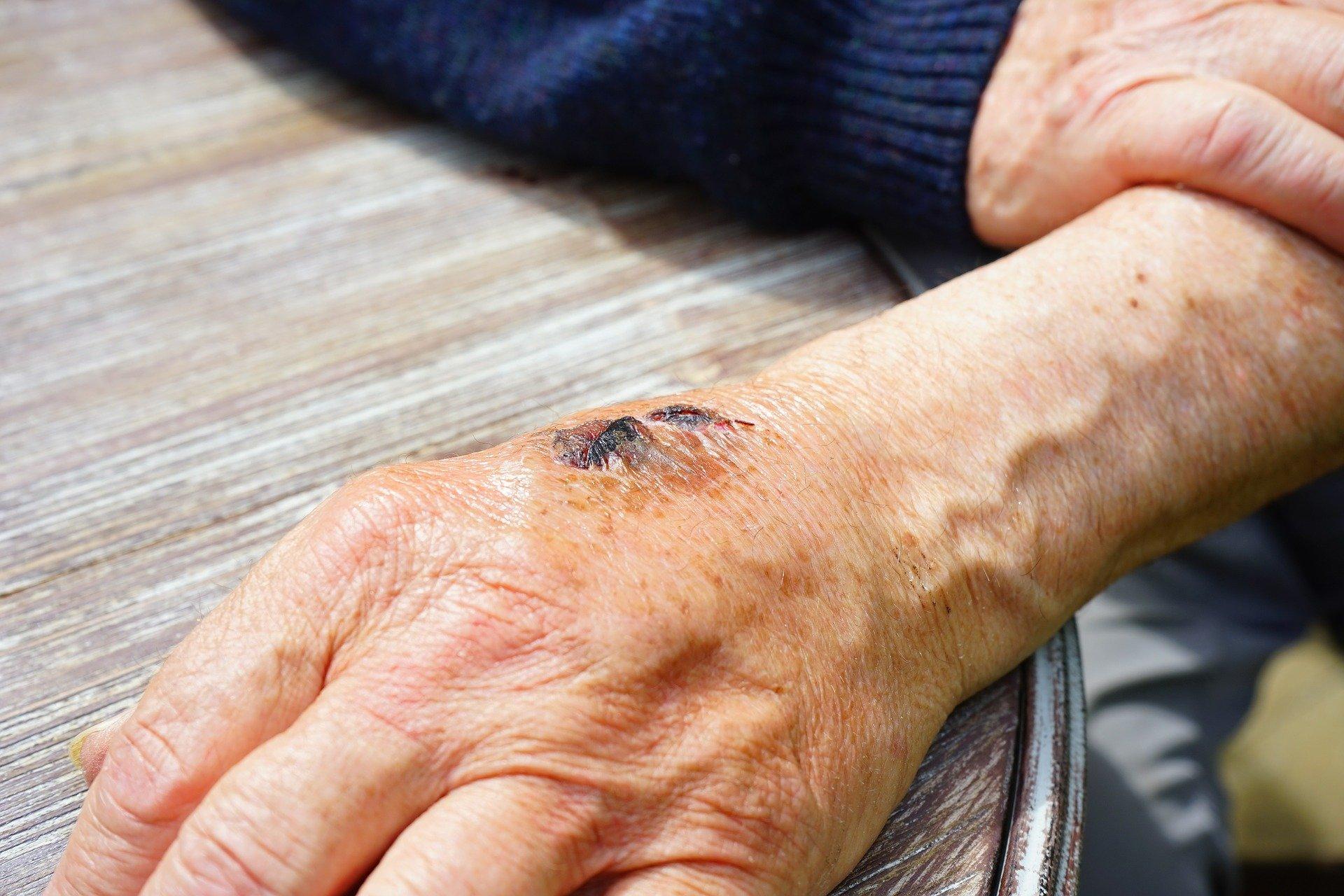 Электрохимический датчик может обнаружить бактерии в ранах в считанные секунды