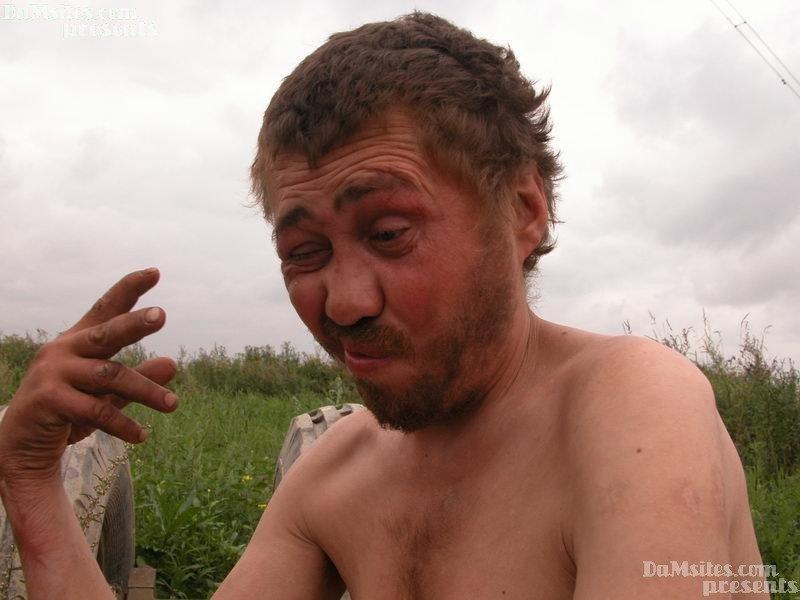 """Количество людей, насмерть отравившихся """"Боярышником"""" в Иркутске, увеличилось до 17"""