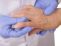 Болезни десен повышают риск ревматоидного артрита