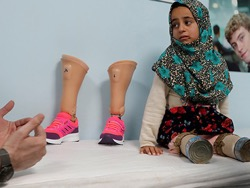 Ходящей на консервных банках девочке подарили настоящие протезы