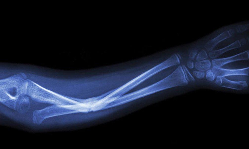 Ученые создали имплантаты, срастающиеся с натуральной костью