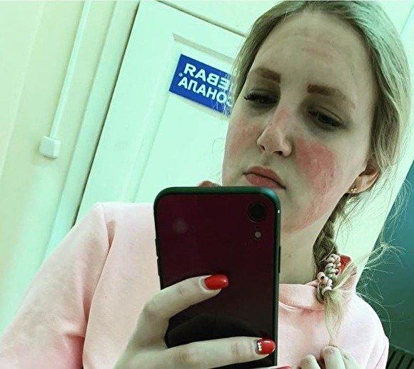 Во Владимирской области медсестра получила ожог лица после использования маски