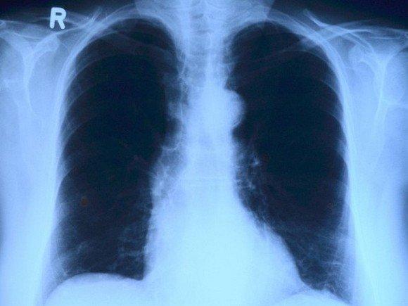 В Петербурге стало в 10 раз больше внебольничных пневмоний, в Башкирии — в 6 раз